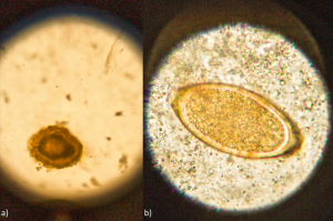 Helminth eggs; a) Ascaris & b) Trichuris/Egg of a & b isolated out of faecal samples, pics by Johannes Bousek, BOKU
